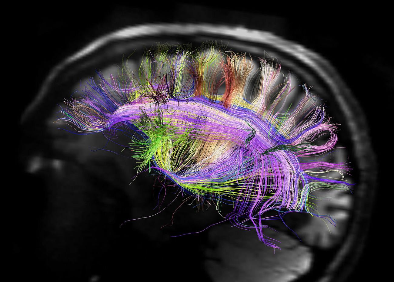 Tipos de contenidos y cómo los procesa el cerebro